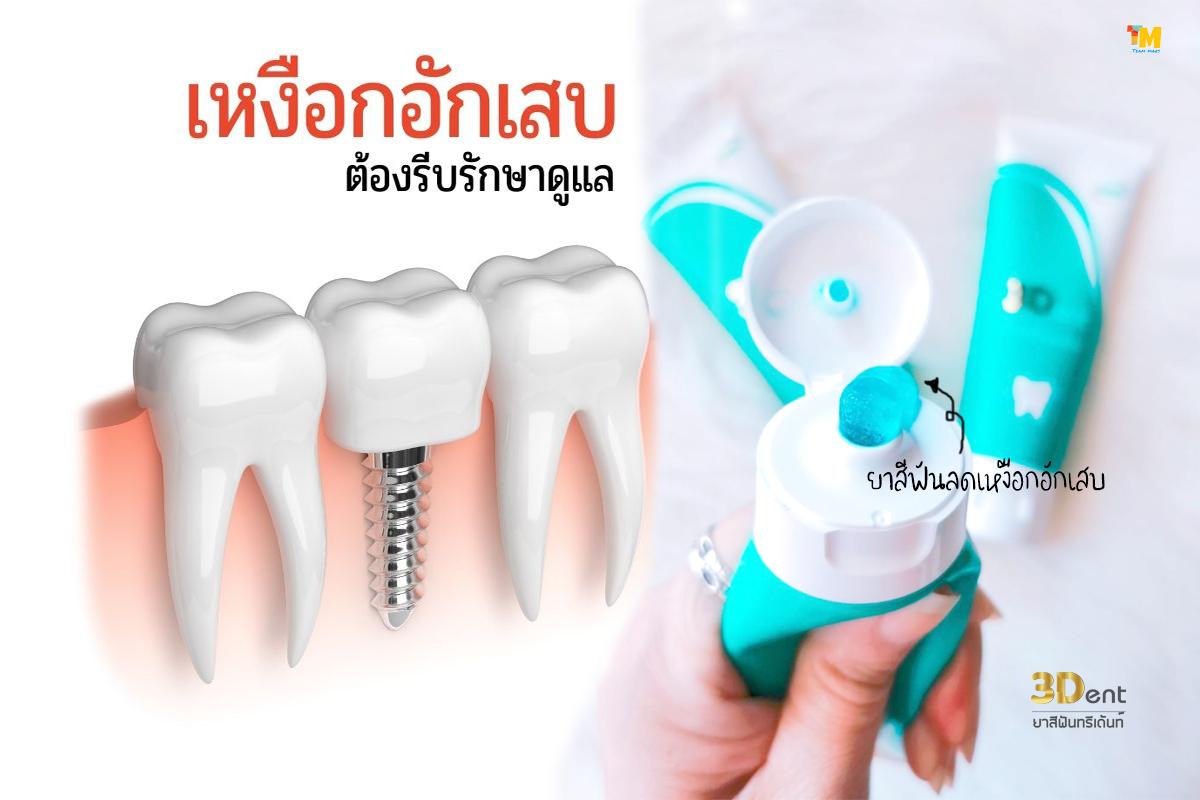ยาสีฟันรักษารากฟัน