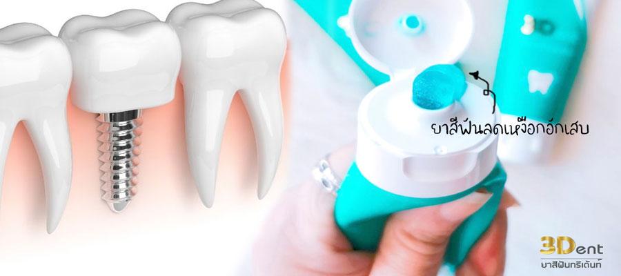 ยาสีฟันรักษาเหงือกอักเสบ
